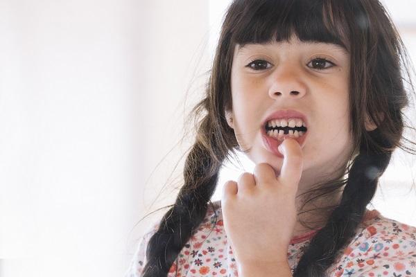 Criança com dente quebrado