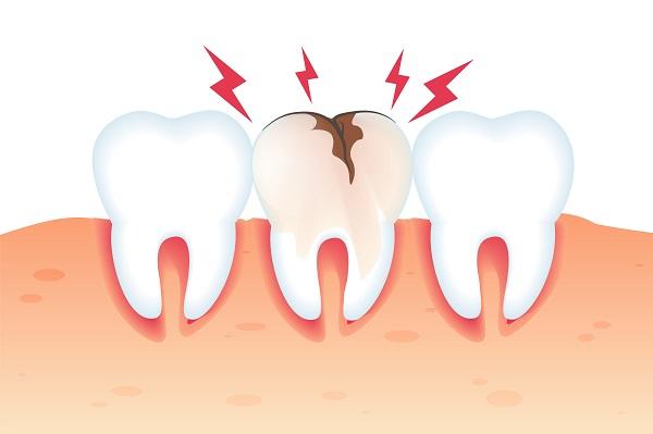 Dente quebrado e o melhor tratamento para este problema