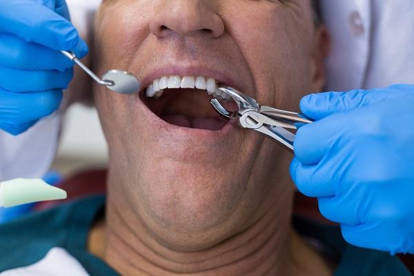 Entenda como funciona a extração de dentes