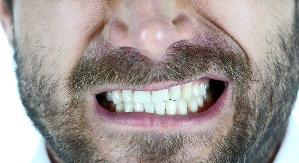 Entenda como tratar dentes amarelados